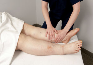 certified lymphedema therapists